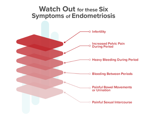 Six Endometriosis Symptoms